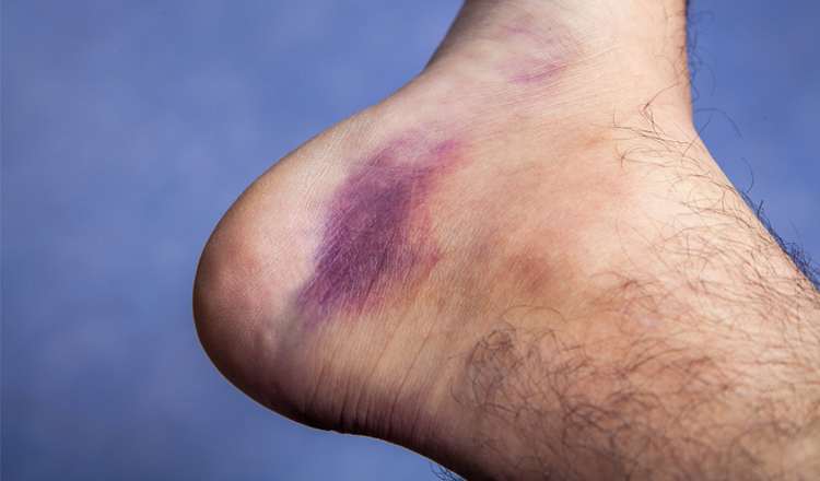 Signs You May Have A Blood Clot Fully Fit For Health